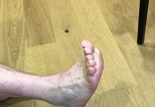Foot movement after ankle fusion