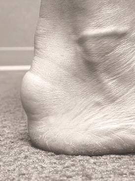 Haglund deformity; pump bump; heel pain
