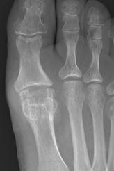 Cartiva X-ray