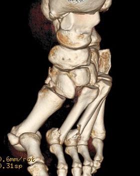 Lisfranc injury CT
