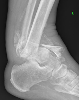Charcot ankle treated by Mr Dev Mahadevan in Reading, Berkshire