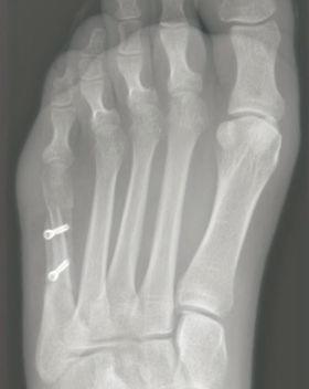 Bunionette osteotomy by Mr Dev Mahadevan