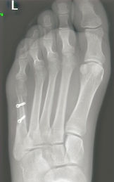 Bunionette osteotomy