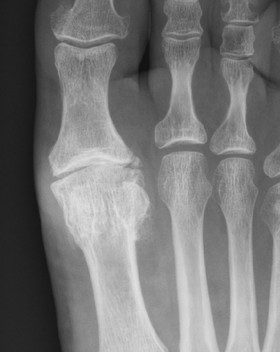 Hallux rigidus treated by Mr Dev Mahadevan in Reading, Berkshire