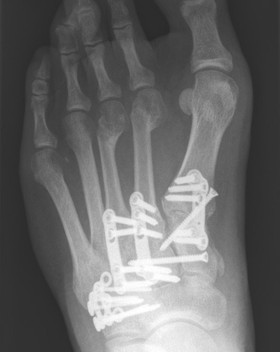 Lisfranc fusion and cuboid ORIF by Mr Dev Mahadevan in Reading, Berkshire