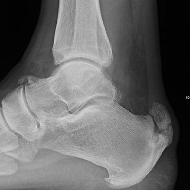 Achilles tendon calcification
