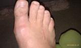 pain-in-big-toe-knuckle-post-mortons-neu