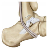 Lateral ligament reconstruction