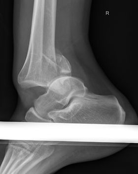 Ankle fractufre dislocation