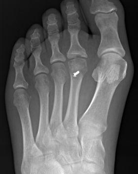 Osteotomy for Freiberg's disease by Mr Dev Mahadevan