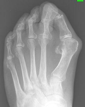 Bunion with arthritis