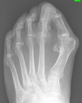 Bunion with arthritis treated by Mr Dev Mahadevan in Reading, Berkshire