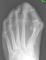 Bunion and arthritis