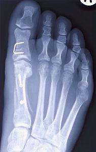 Bunion tretament - Scarf and Akin osteotomy