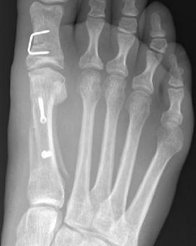 Scarf and Akin osteotomy by Mr Dev Mahadevan