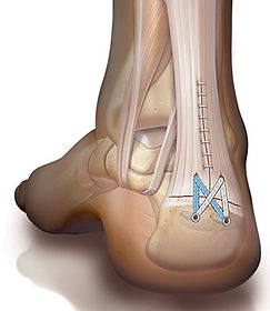 Achilles tendon repair / reattachment by Dev Mahadevan