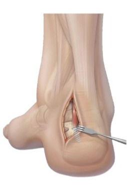 FHL tendon transfer for Achilles disorders