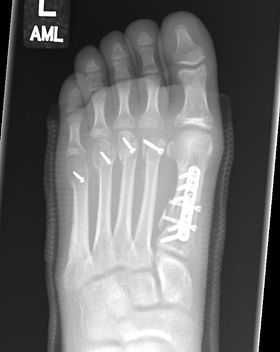 Foot fracture fixation surgery performed by Mr Dev Mahadevan, Reading, Berkshire