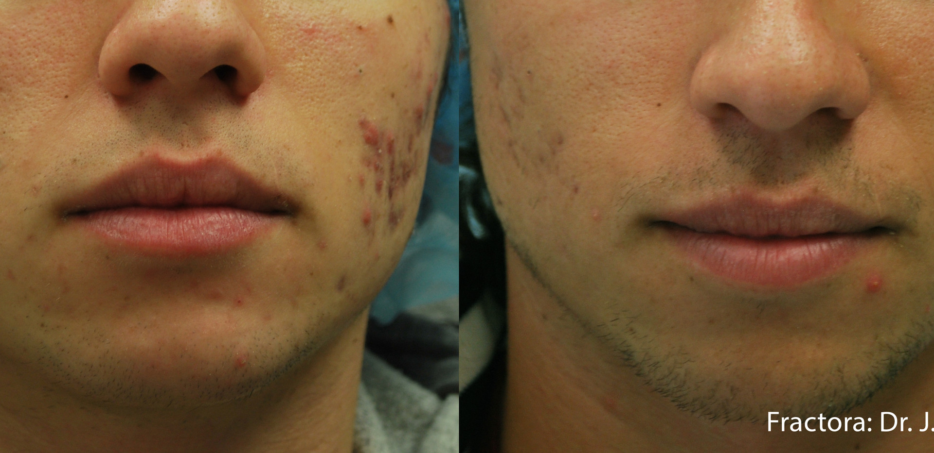 Fractora Acne Before After Photo 5