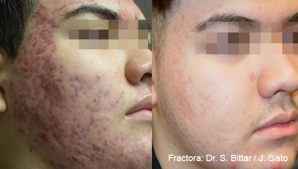 Fractora Acne Before After Photo 2