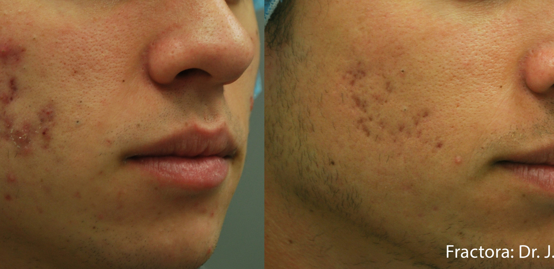 Fractora Acne Before After Photo 3