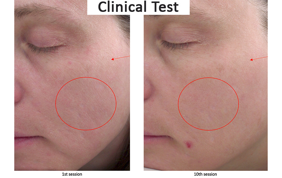Skin improvement though LED treatments