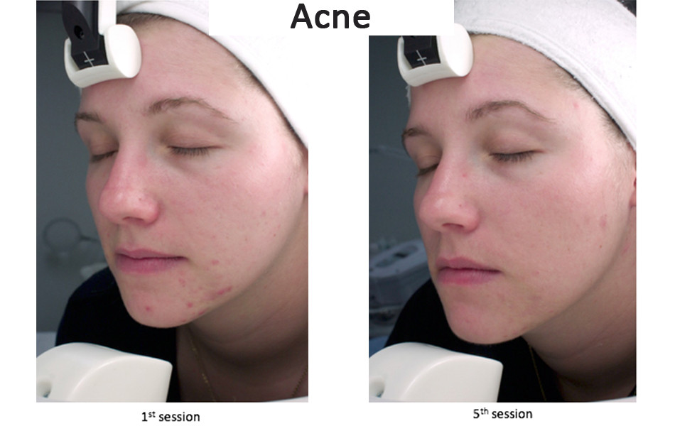 Acne treatment using LED light treatment
