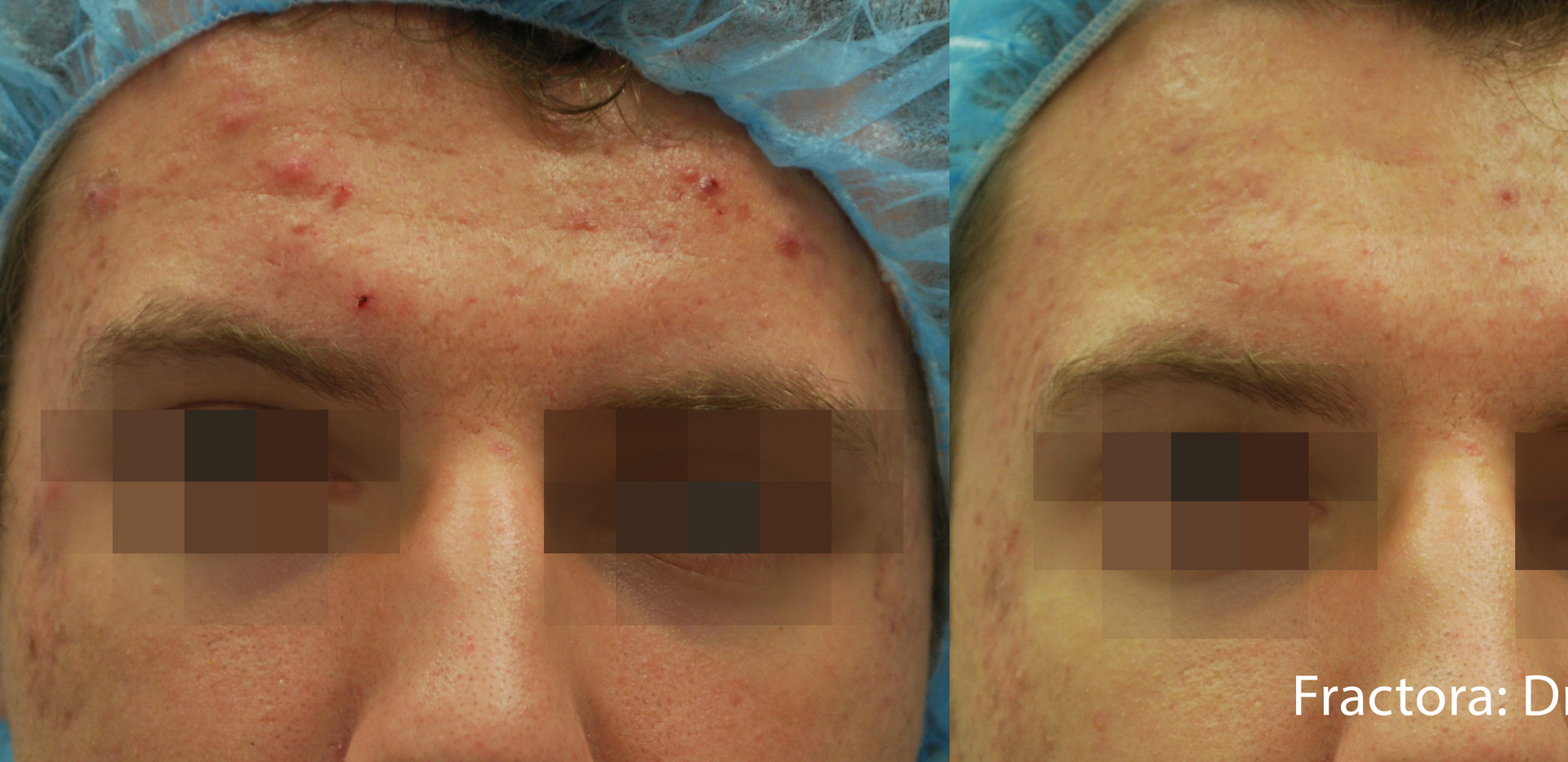 Fractora Acne Before After Photo 8