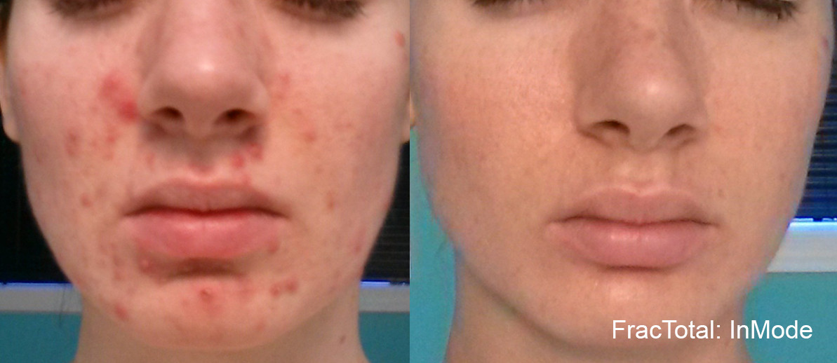 Fractora Acne Before After Photo 11