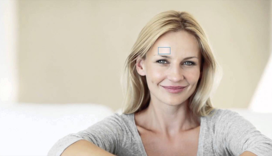 HydraFacial Overview