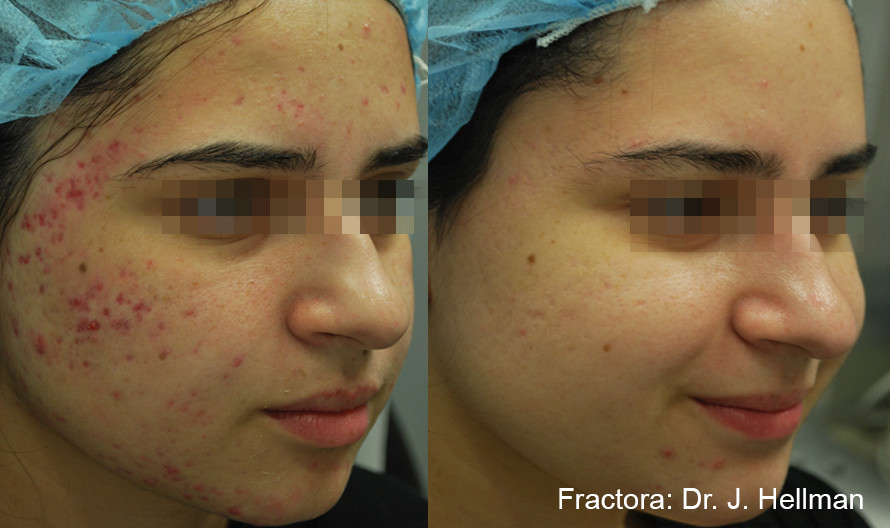 Fractora Acne Before After Photo 10