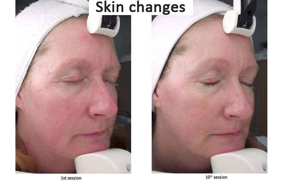 Skin changes with LED treatment.jpg