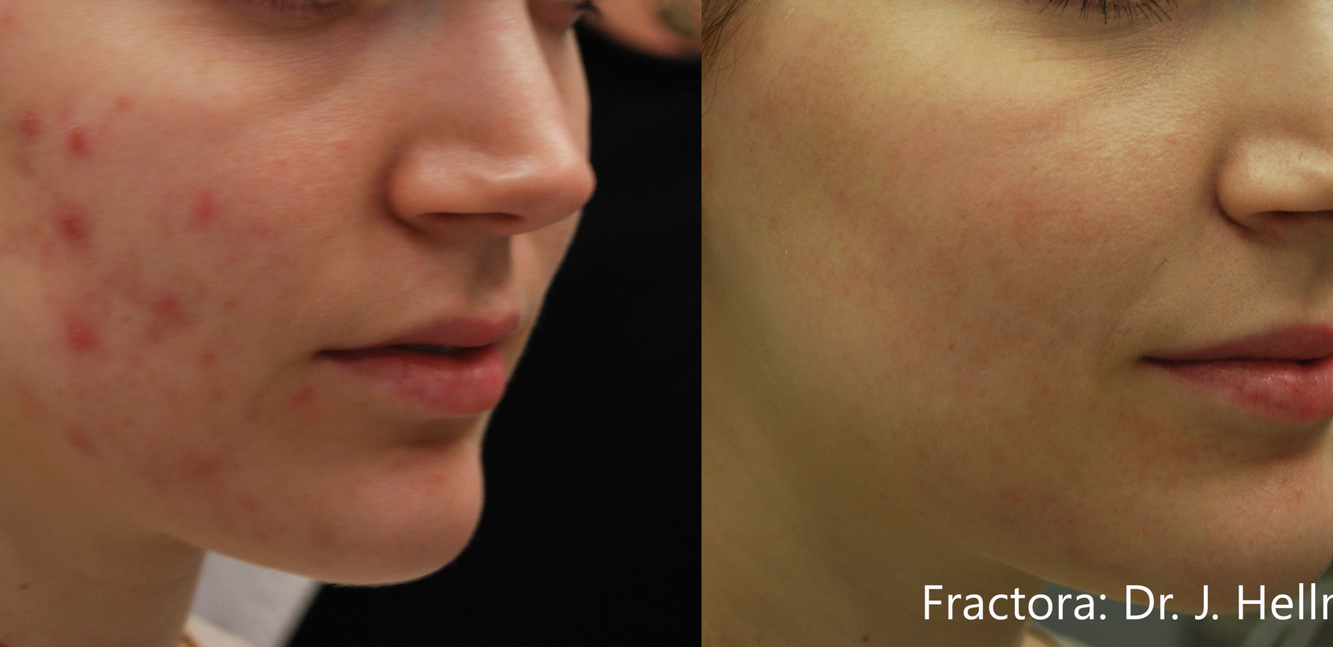Fractora Acne Before After Photo 6