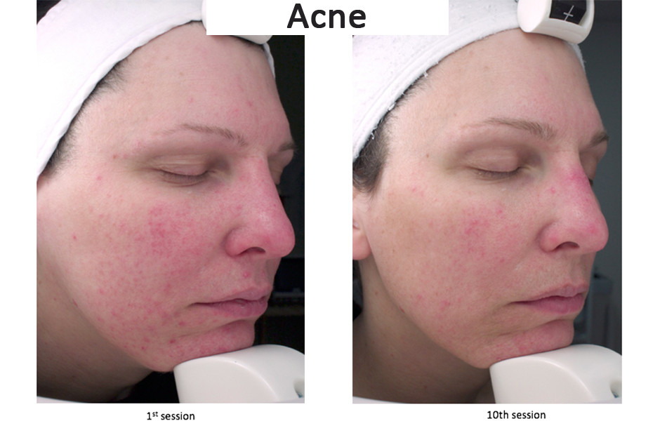 Acne treated by LED Before & After.jpg