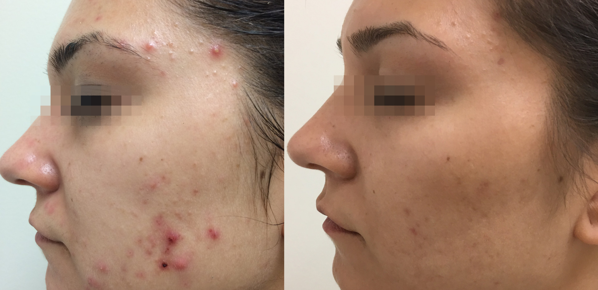 Fractora Acne Before After Photo 9