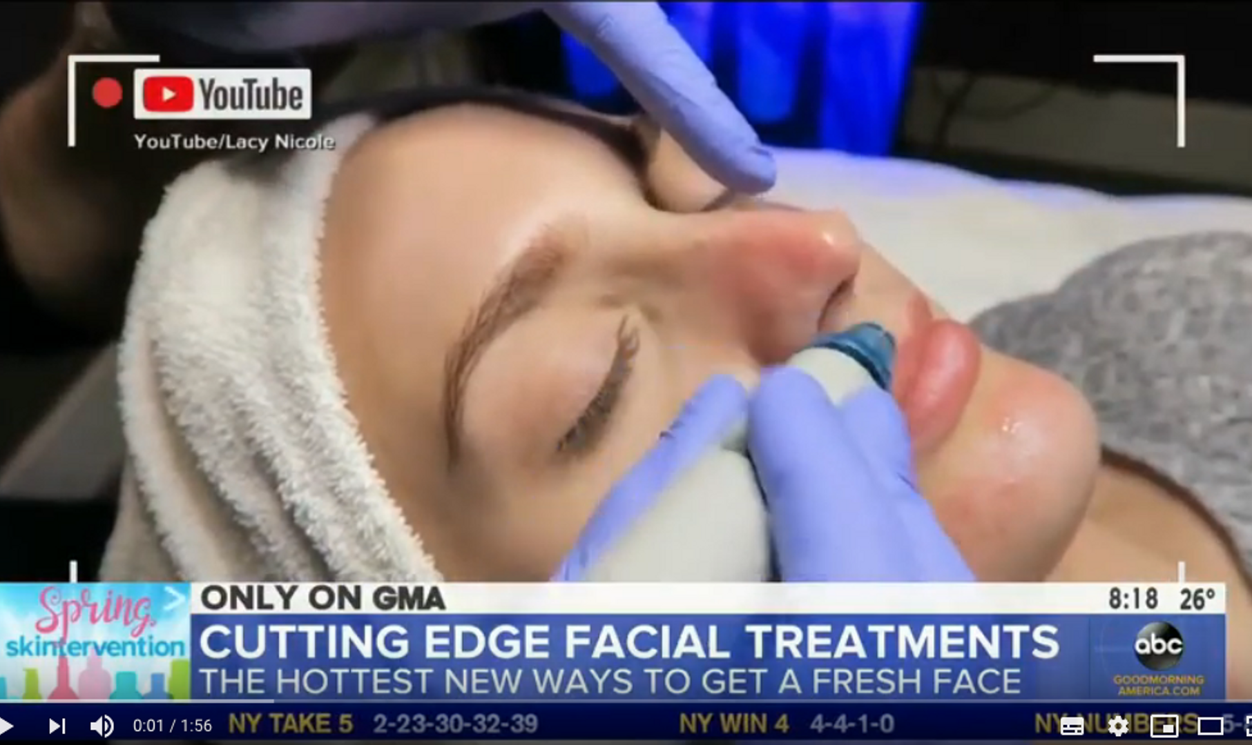 Good Morning America with HydraFacial