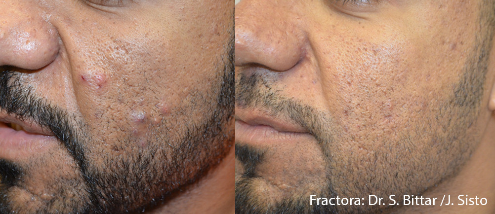 Fractora Acne Before After Photo 1