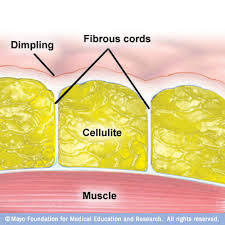 Understand and Remove Cellulite with Home Remedies…