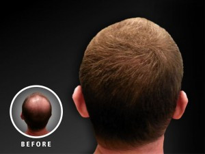 hair loss treatment Fibond