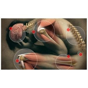 Home Remedies for Bone Pain