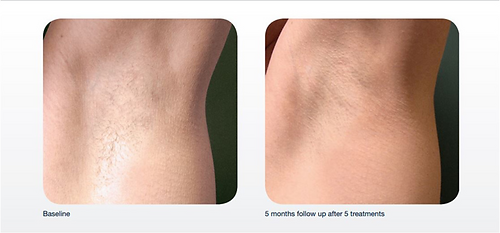 laser hair removal underarms before and after.