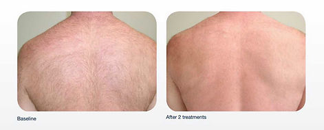 Laser Hair Removal Back before and after