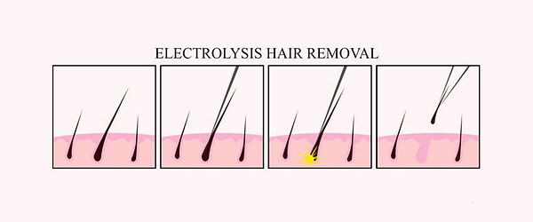 Electrolysis hair removal.jpg