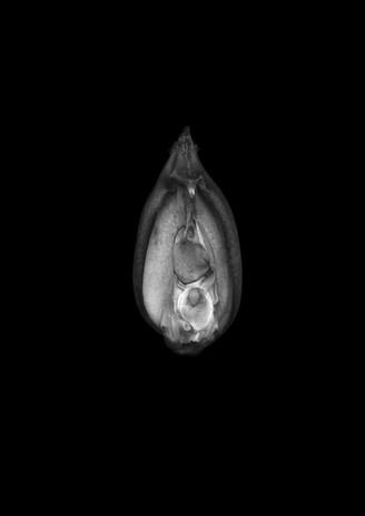 Gynoecium.jpg