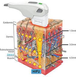 high_intensity_focused_ultrasound.jpg