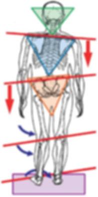 Body Misalignment