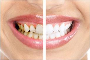 Чистка зубов в Самаре
