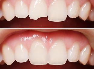 Художественная реставрация зубов в Самаре