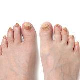 Fungal toenail infection.jpg