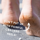 painful cracked heels.png